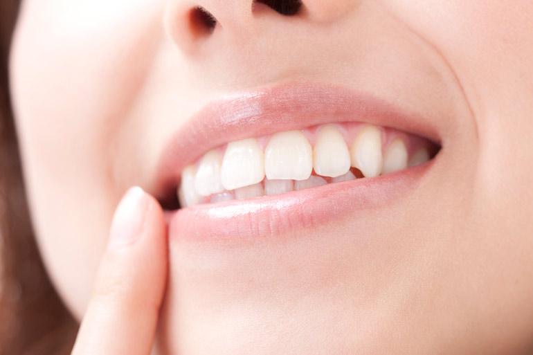 ホワイトニング(御徒町新御徒町上野歯医者歯科松原歯科クリニック)